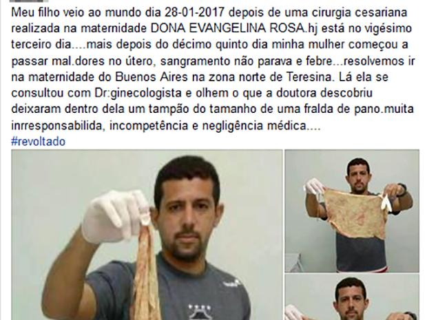 Após cesariana, ginecologista encontra tampão de pano dentro de mulher (Foto: Reprodução/Facebook)