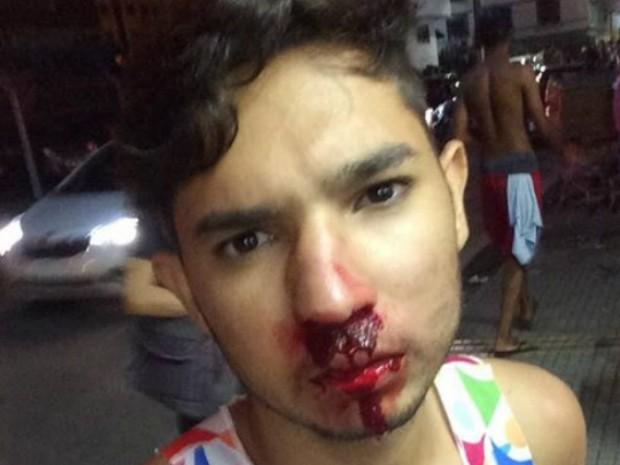 Jovem agredido apóa passagem de bloco em Barra Mansa (Foto: Reprodução/Facebook)