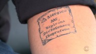 Na Serra, tatuador marca de pele de alérgicos para ajudar