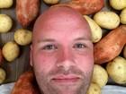 Com dieta bizarra, australiano promete comer só batatas por 1 ano