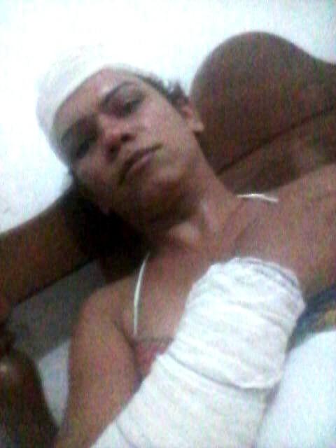 Bhrunna Ruby diz ter sofrido preconceito durante atendimento em UPA (Foto: Arquivo pessoal)