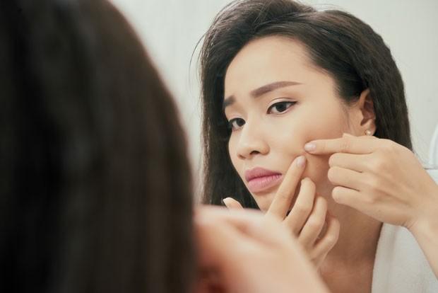 A acne adulta pode surgir por questões hormonais ou ainda pelo estresse ou alimentação (Foto: Thinkstock)