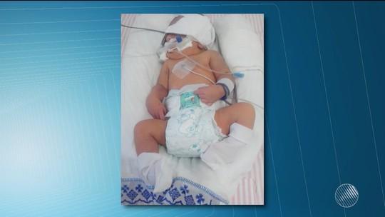 Recém-nascido que corre risco de morrer aguarda por UTI há 10 dias
