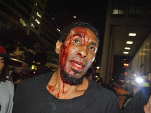 Manifestante é ferido no Rio de Janeiro. (Foto: Nicson Olivier/ Parceiro/ Agência O Globo)