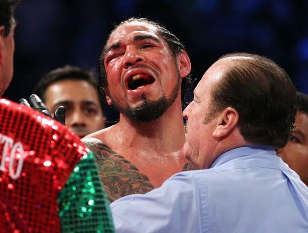 Antonio Margarito lamenta derrota para Miguel Cotto boxe (Foto: AFP)