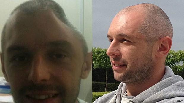 Lee Charie afirma que sua vida mudou completamente depois do implante da prótese (Foto: BBC)
