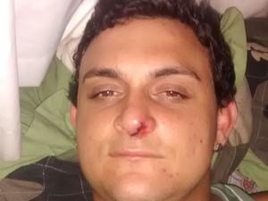 Vítima sofreu corte no nariz e precisou dar três pontos  (Foto: Arquivo pessoal/ Diego Adelino)