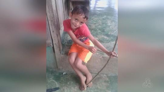 Menino morre após ser picado por escorpião no interior do Amazonas