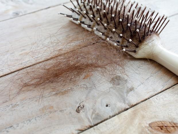 Queda de cabelo (Foto: Thinkstock)