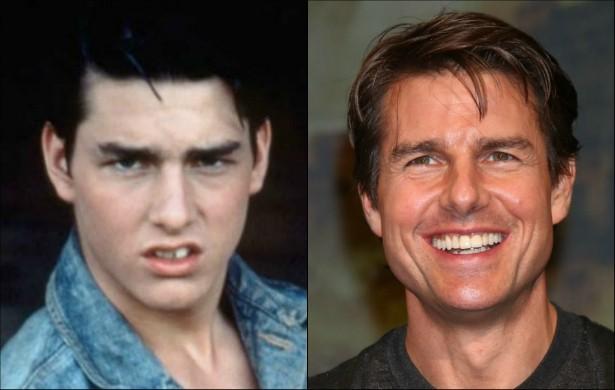 Tom Cruise continua sendo um dos maiores galãs de Hollywood, mas, após esta foto dele na juventude começar a circular pela internet, descobrimos que o ator já teve uma dentição problemática. (Foto: Tumblr e Getty Images)