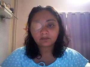 Carla Castro, internada após uma trombose. Ela iniciou um movimento de alerta contra a combinação de pílula e cigarro (Foto: Carla Castro)