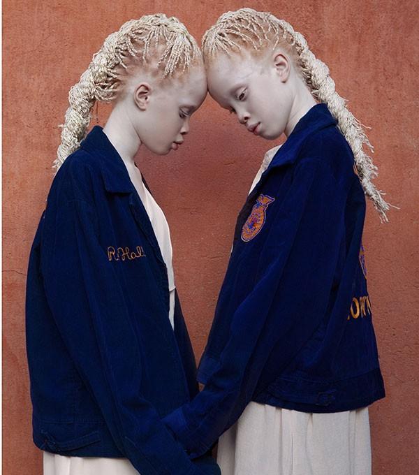 As gêmeas Mara e Lara (Foto: Vinícius Terranova)