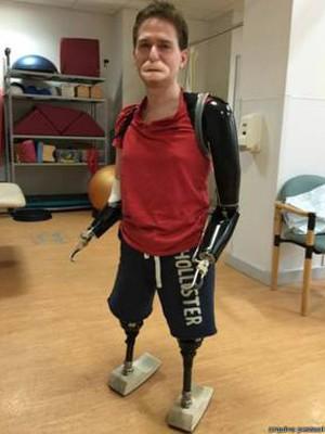 Alex diz que a doença o fez ver suas relações pessoais de forma diferente (Foto: Arquivo pessoal)