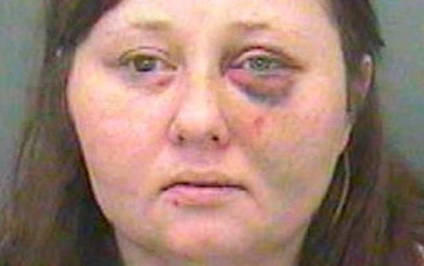 Gemma Hollings foi condenada à prisão. Segundo a polícia, os ferimentos que ela apresenta nessa foto não se relacionam com o caso (Foto: Divulgação/BBC)
