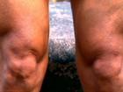 Especialistas explicam como joelhos funcionam e como evitar lesão e dor