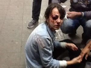 jornalista ferida (Foto: Diego Zanchetta/Estadão Conteúdo)