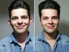 Projeto oferece cirurgia para 'orelhas de abano' a preço acessível, em Goiás