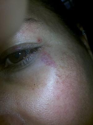 Professora tem hematomas pelo corpo  (Foto: Ana Lemos / Arquivo Pessoal)