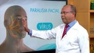Médico explica como a paralisia facial periférica atinge os músculos