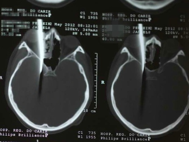Raio-x mostra uma linha branca, a faca que atingiu o paciente (Foto: Hospital do Cariri/Divulgação)