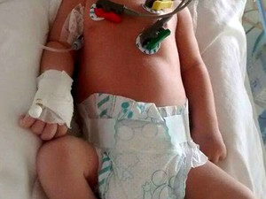 Bebê Augusto Siqueira precisa fazer com urgência cirurgia no coração (Foto: Elzângela Siqueira / Arquivo Pessoal)