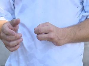 Alex Souza perdeu dois dedos quando realizava limpeza em uma máquina (Foto: Tv. Vanguarda)