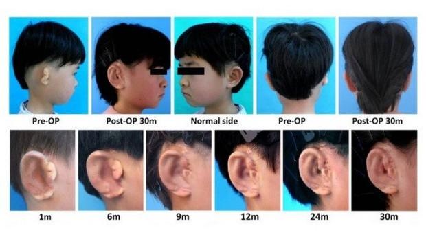 Imagens mostram a evolução do implante ao longo do tempo   (Foto: Reprodução)