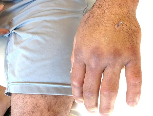 mão lesionado do lutador Victor Belfort (Foto: Reprodução / Twitter)