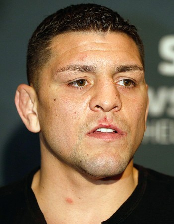 Nick Diaz UFC Coletiva (Foto: Josh Hedges / Getty Images)