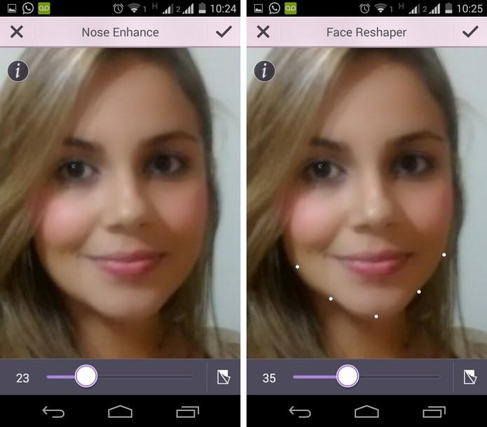 Antes e depois da diminuição do contorno do rosto (Foto: Reprodução/ Marcela)