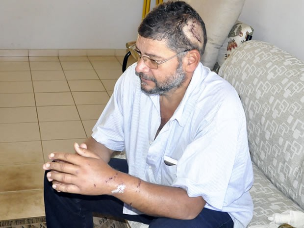 Moacir Rodrigues teve ferimentos no braço e na cabeça (Foto: Pollyana Araújo/ G1)