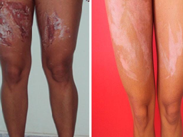 Queimaduras nas pernas de advogada na primeira semana (à esquerda) e nesta terça-feira (à direita) (Foto: Hiale Silva/Arquivo Pessoal)