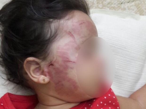 Família diz que bebê de 11 meses foi mordido e sofreu maus-tratos em creche em Rondonópolis (Foto: Arquivo pessoal)
