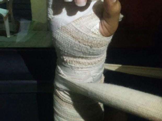 Colega de Hemoly teve ferimentos na mão durante a queda (Foto: Arquivo Pessoal)