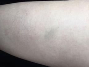 Rayanne Morais mostra hematoma após suposta agressão do ex-noivo, o ator Douglas Sampaio (Foto: Arquivo pessoal)