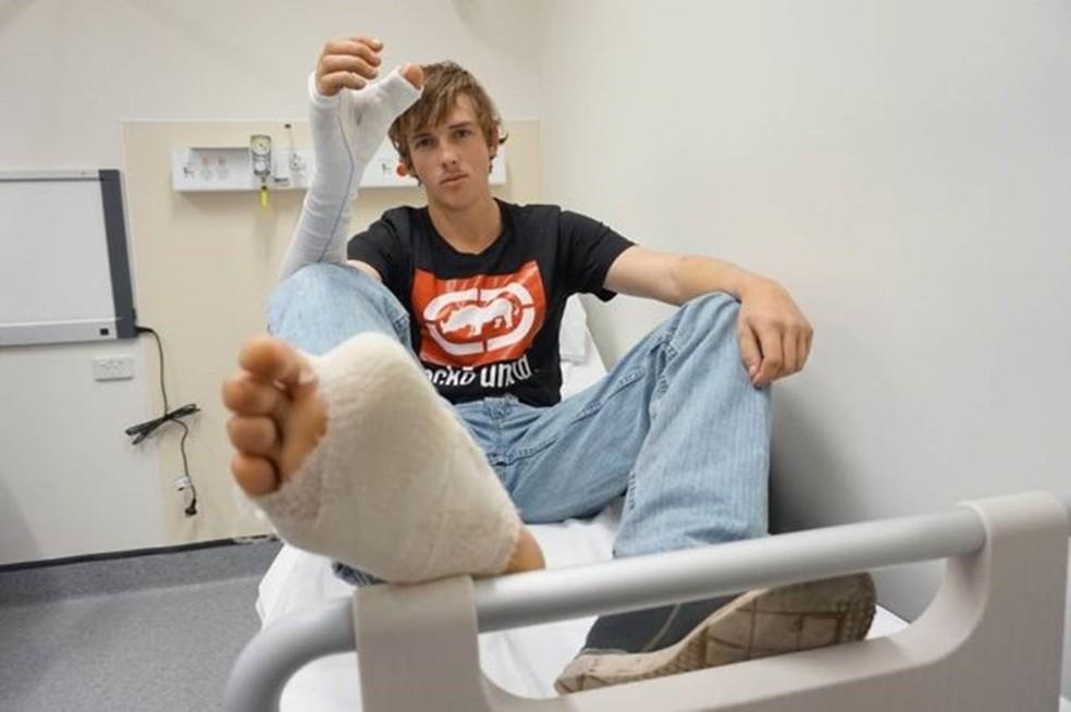 Zac Mitchell's teve o dedão do pé enxertado em sua mão direita (Foto: South Eastern Sydney Local Health District)