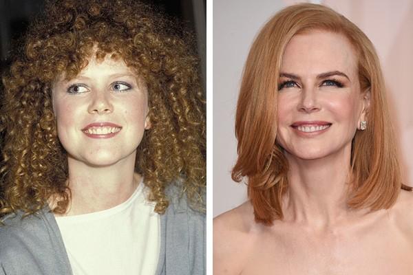 Nicole Kidman em 1986 e em 2015 (Foto: Getty Images)