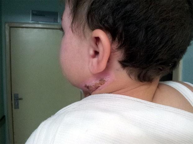 Criança queimada por água espera sete horas por ambulância para Ribeirão Preto (Foto: Rodolfo Tiengo/G1)