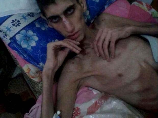 Homem em Madaa, na Síria, onde pessoas estão morrendo por falta de medicamentos e comida, é visto em foto sem data tirada de mídia social e distribuída pela agência Reuters (Foto: Reuters)