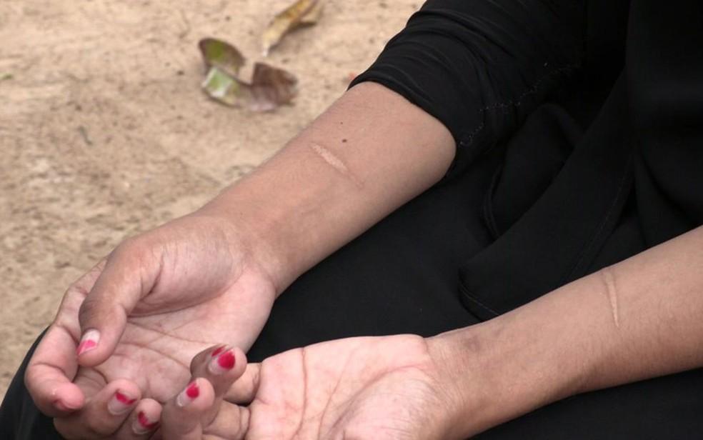 Shafa tem cicatrizes nos pulsos, lembrança de uma tentativa de suicídio (Foto: BBC)