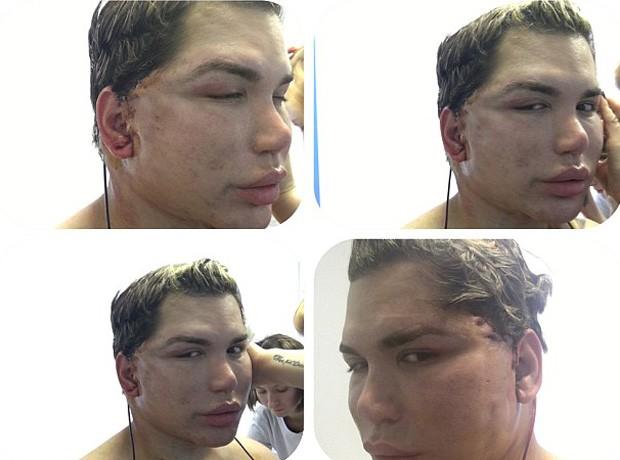 Rodrigo Alves, o Ken Humano, se recupera da 50ª cirurgia (Foto: Reprodução)