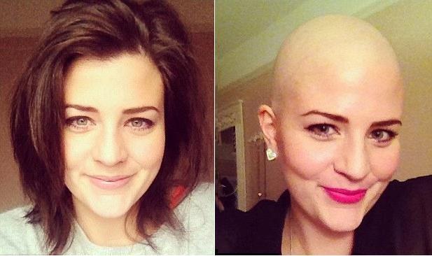 Laura antes e depois de raspar a cabeça (Foto: arquivo pessoal)