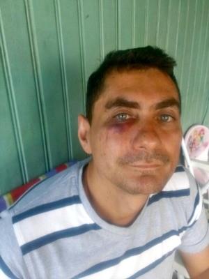 Raimundo Gomes diz que foi defender um rapaz que estava sendo expulso  (Foto: Adelcimar Carvalho/G1)