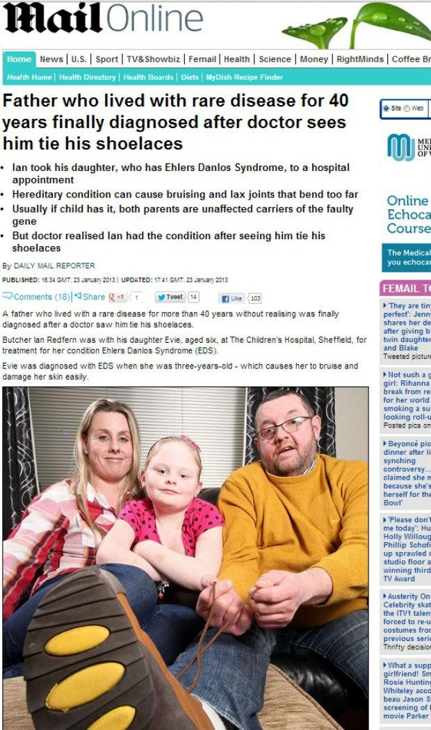Síndrome de Ehlers Danlos (Foto: Reprodução/Daily Mail)