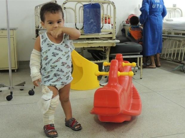 Eduardo Teodoro, 2 anos, caiu em fogueira de São João e teve queimaduras. (Foto: Lorena Aquino/G1)