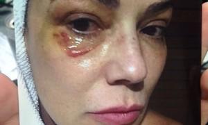 'Tive medo de denunciar, tive vergonha', afirma Luiza Brunet