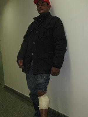 O marmorista Antônio também teve lesões na perna  (Foto: Roney Domingos/ G!)