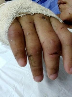 Menina tem diversos ferimentos pelo corpo (Foto: Arquivo Pessoal/Família)