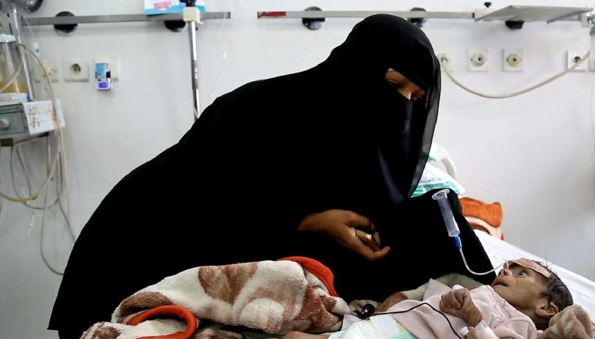 A mãe de Udai tenta alimentá-lo na última terça-feira (22), num hospital em Sanaa (Foto: AP Photo/Maad al-Zikry)