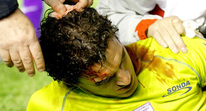 Martin Silva goleiro sangrando (Foto: AP)